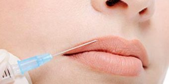 Lip Line Fillers Image